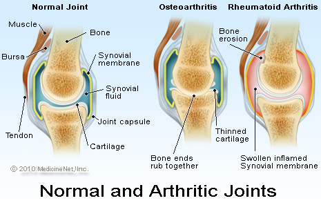 Arthritis Is A Painful And Debilitating Disease And Is So Prevalent